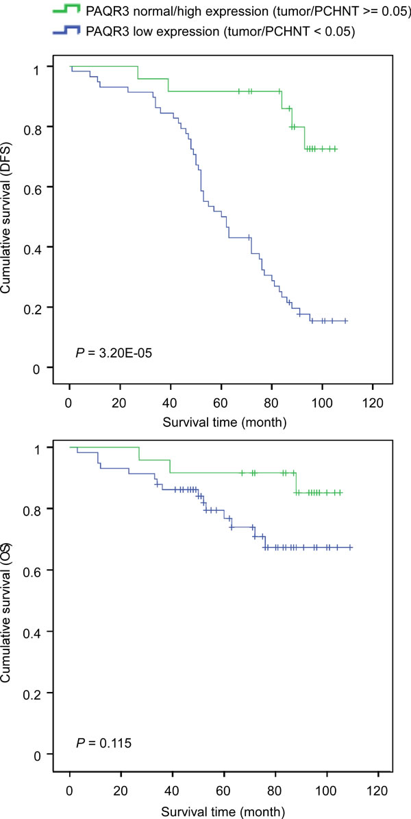 Correlation of PAQR3 expression level with survival of breast cancer patients.