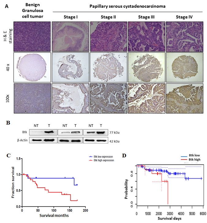 High expression of Btk in human ovarian tumors is associated with a poor cancer prognosis.