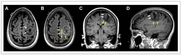 Patient with solitary breast cancer brain metastasis involving the posterior aspect of the left middle frontal gyrus.