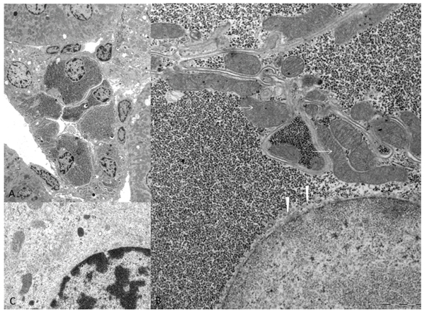Electron microscopic features of diabetes related clear cell tubules (CCT).