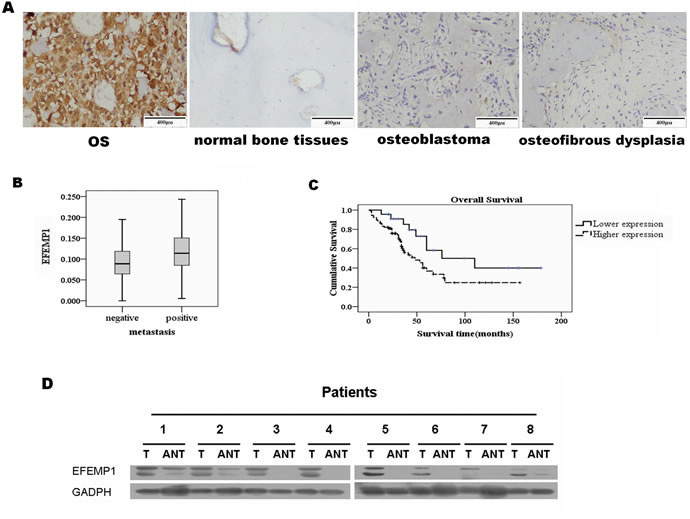 Overexpression of EFEMP1 in osteosarcoma patients.