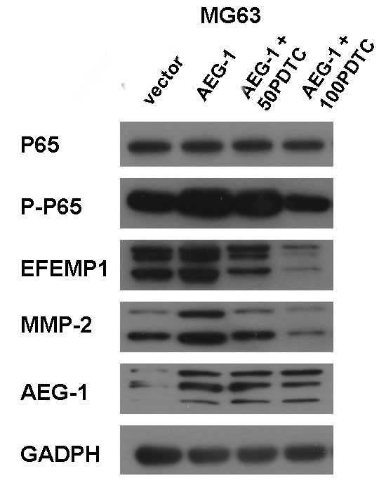 PDTC suppressed EFEMP1 expression via inhibition of NF-κB signaling pathway in osteosarcoma cells.