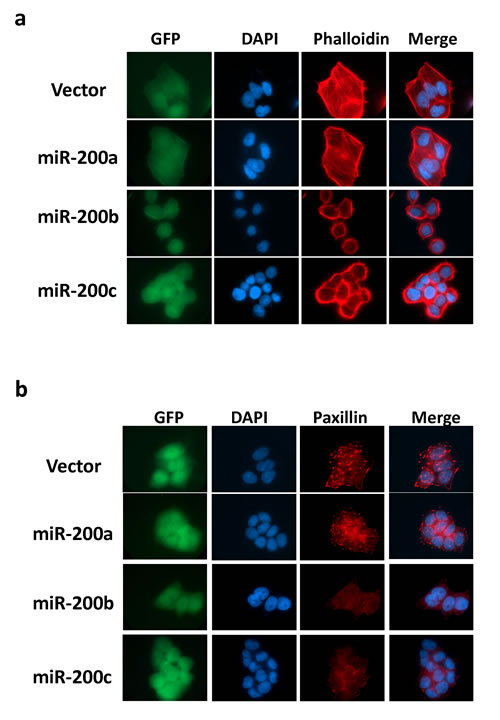MiR-200b subfamily suppressed stress-fiber and focal adhesion formation mediated by Rho/ROCK in HCC cells.