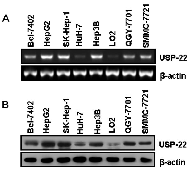 USP22 expression in HCC tissues and cell lines.