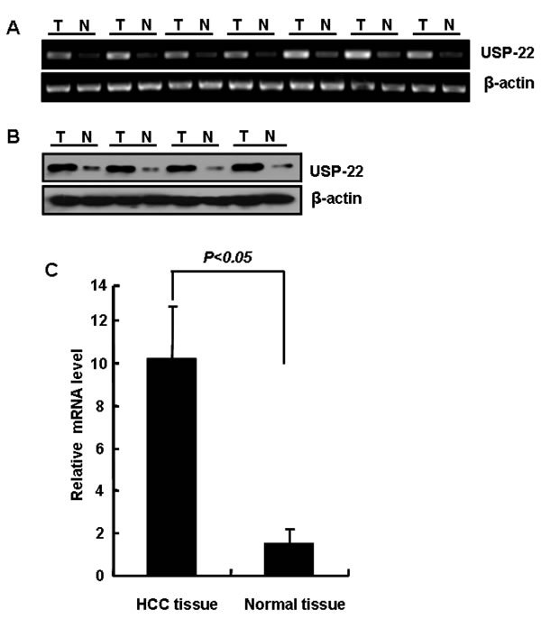 USP22 expression in HCC and normal liver tissues.