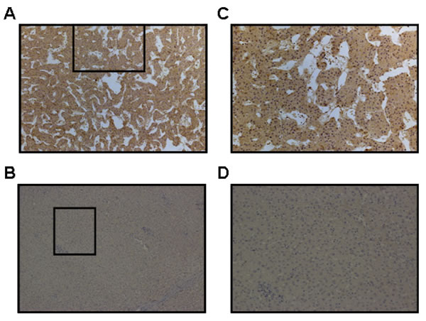 Immunohistochemical staining for USP22 in HCC and normal adjacent hepatic tissues.