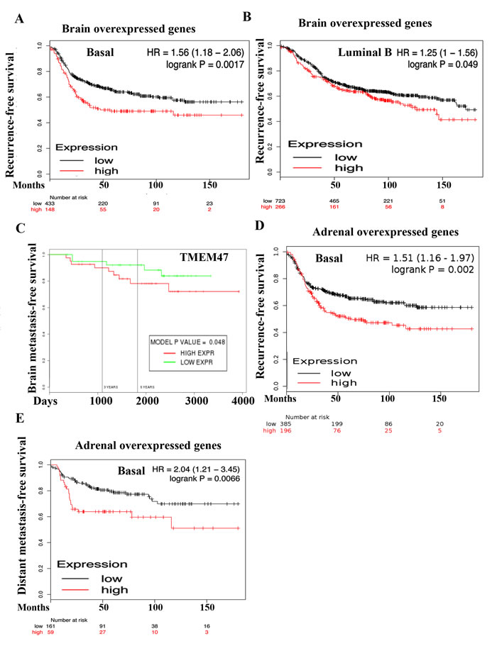 Prognostic value of genes overexpressed in 231-BR and ADMD-231 cells.