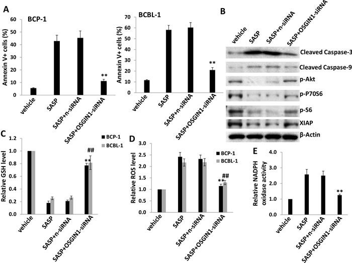 xCT inhibition induces KSHV-infected PEL cell apoptosis potentially through upregulation of OSGIN1.