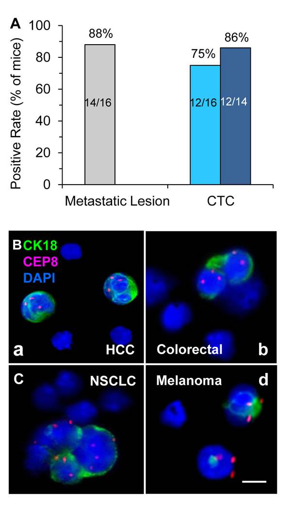 Analysis of metastatic potential of GA0087 mice and
