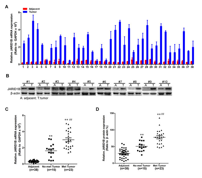 JARID1B is highly expressed in HCC.