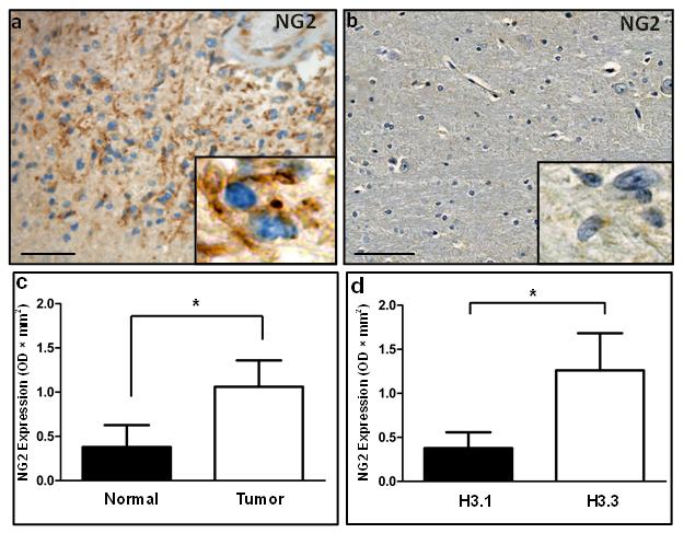 Immunohistochemical and western blotting analysis validates NG2 upregulation in human DIPG.