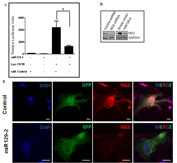 NG2 upregulation in DIPG is partially due to hypermethylation and downregulation of its regulatory microRNA, miR129-2.