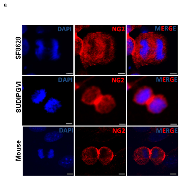 Mouse and human DIPG neurospheres exhibit symmetric NG2 expression