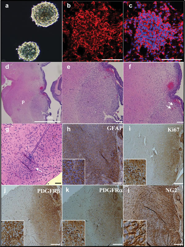 Orthotopic injection of NG2 expressing cells causes aggressive brainstem tumors