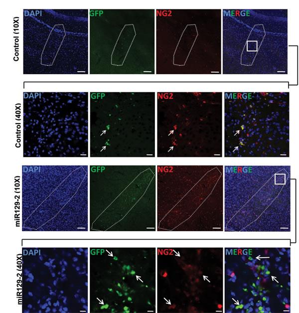 miR129-2 targets and downregulates NG2