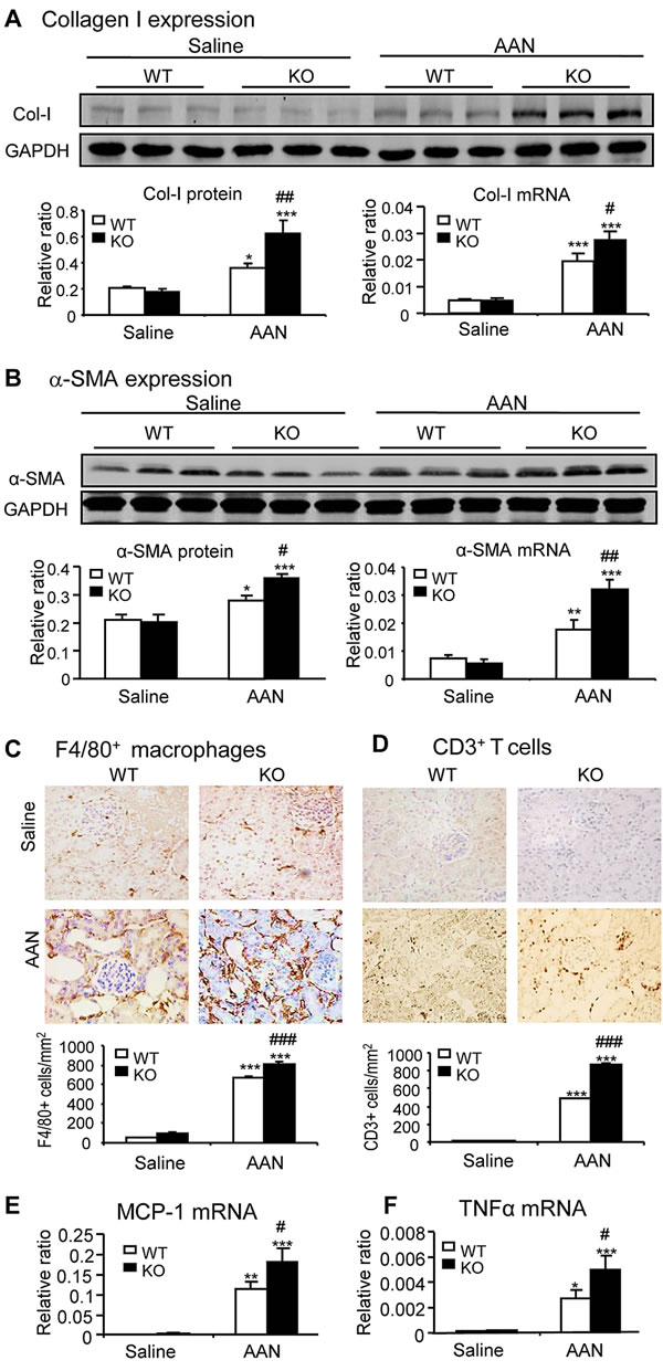 Disruption of Smad7 enhances AA-induced renal fibrosis and inflammation at day 42 after induction of AAN.