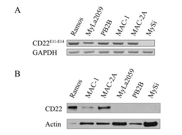 Expression of CD22 in CTCL cell lines.