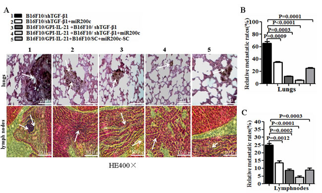 Histological analysis of lungs and lymph nodes of melanoma bearing mice.