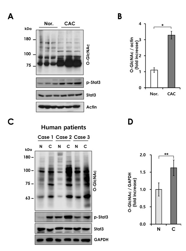 Elevated O-GlcNAcylation in mouse and human CAC.