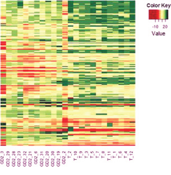 Heat-map of miRNAs differentially expressed by BM-infiltrating cells and primary tumors.