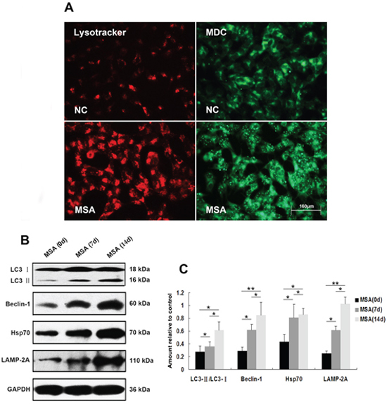 Induction of autophagy in SH-SY5Y cells following exposure to MSA-CSF.