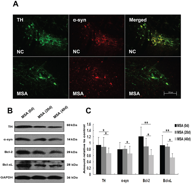 MSA-CSF treatment caused degeneration of TH-positive neurons in striatum nigra.