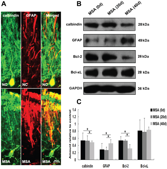 MSA-CSF treatment caused degeneration of Purkinje cells in cerebellum cortex.