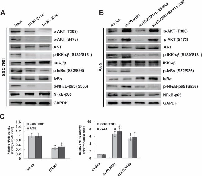 ITLN1 attenuated the NFκB activity via inactivation of PI3K/AKT/IKK signaling in gastric cancer cells.