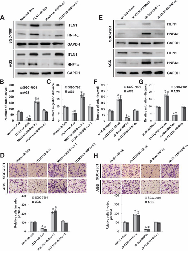 ITLN1 suppressed the growth, migration, and invasion of gastric cancer cells in vitro through up-regulating HNF4α.