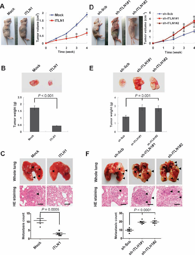 ITLN1 attenuated the growth and metastasis of gastric cancer cells in vivo.