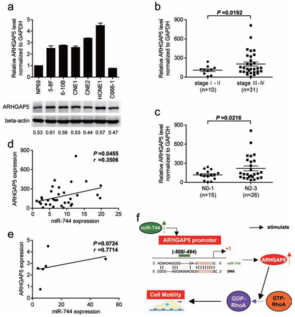 ARHGAP5 expression is upregulated in NPC cell lines and associated with tumor progression as well as miR-744 expression in NPC clinical specimens.