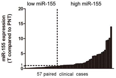 Analysis of miR-155 in clinical tissues.