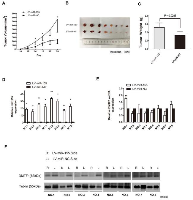 MiR-155 promotes tumorigenesis of bladder cancer in vivo.