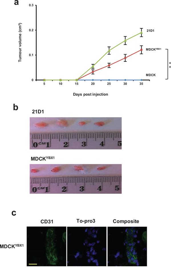 MDCKYBX1 cells generate tumour xenografts.