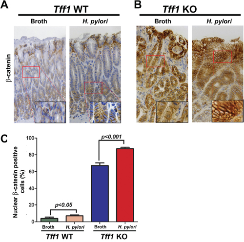 H. pylori infection enhances nuclear accumulation of β-catenin in Tff1 knockout gastric cancer mouse model.