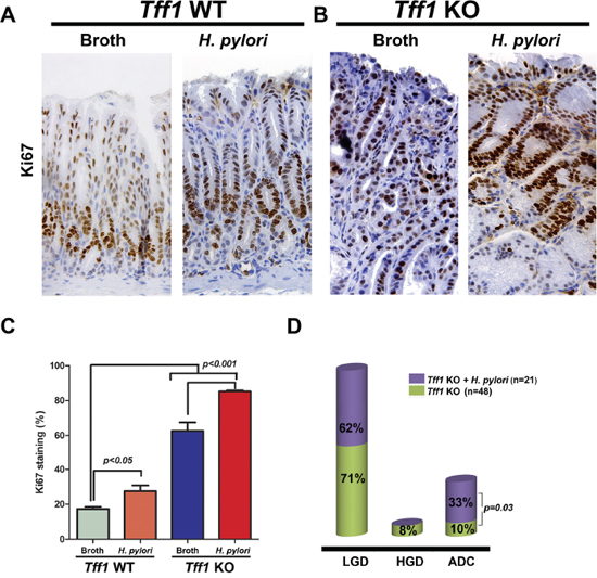 H. pylori infection enhances gastric cell proliferation and tumorigenesis in Tff1-knockout mice.