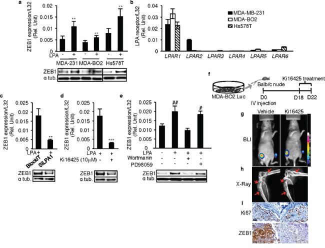 LPA1 mediates LPA-induced expression of ZEB1 in vitro and in vivo.