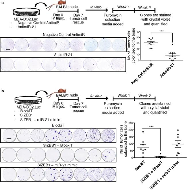 ZEB1 controls miR-21-dependent tumor cell bone colonization.