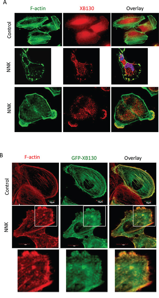 NNK-induces translocation of XB130 to actin-rich punctate and lamellipodia at the periphery of BEAS2B cells.