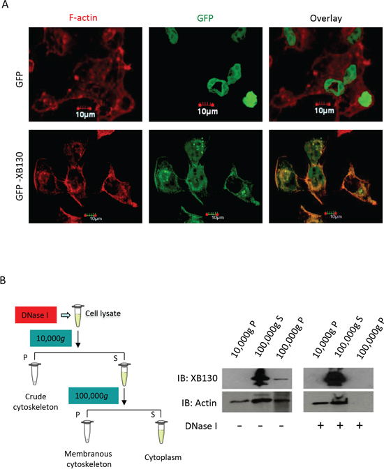 NNK induces association of XB130 with actin cytoskeletal structures. BEAS2B cells were stably transfected with GFP-XB130 or GFP alone.