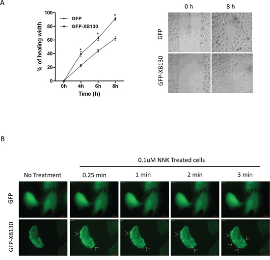 Overexpression of XB130 enhances BEAS2B cell migration. BEAS2B cells were stably transfected with GFP-XB130 or GFP alone.