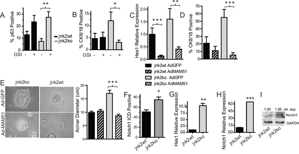 Elevated Notch1 in jnk2ko glands and mammary cells increases luminal cell populations.