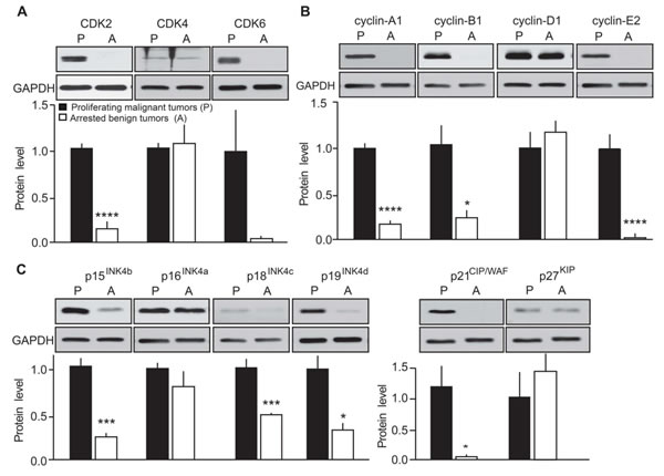 Evaluation of the effects of p25-GFP overexpression on cell cycle protein expression in malignant versus benign mouse MTC.