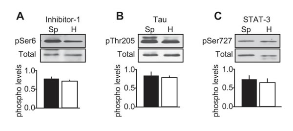 Characterization of CDK5 activity in human MTC tissues.
