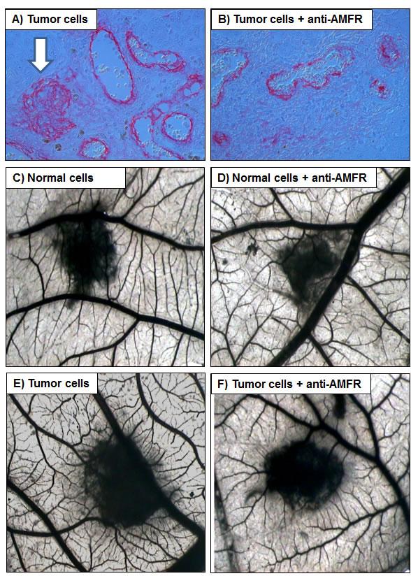 Chick embryo chorioallantoic membrane (CAM) invasion and angiogenic assays.