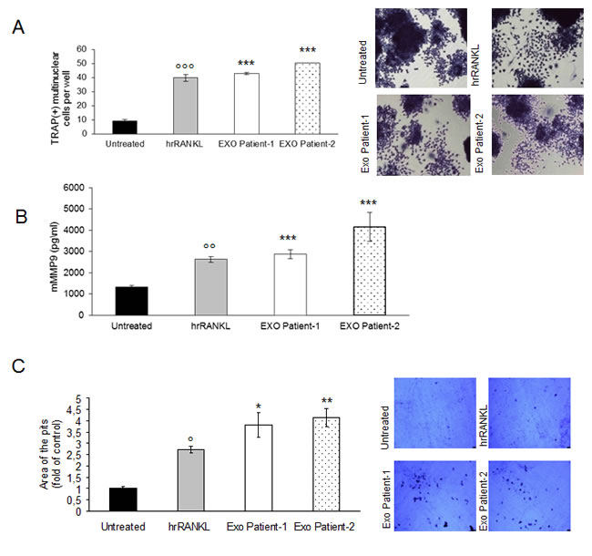 Exosomes in plasma of patients with multiple myeloma promote osteoclasts differentiation from Raw264.7 precursors and regulate bone resorption activity of osteoclasts.