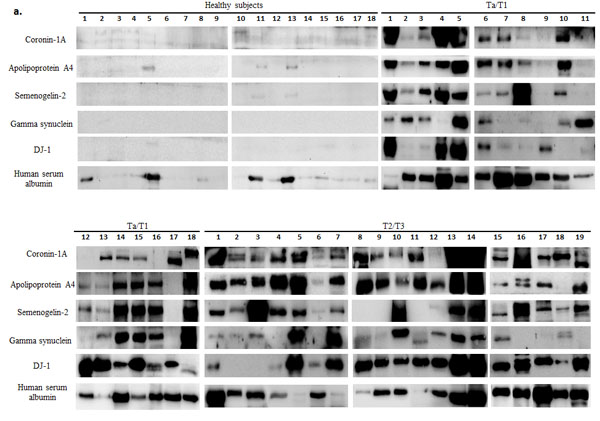 Western blot analysis of urine samples from healthy subjects and bladder carcinoma (BCa) patients.