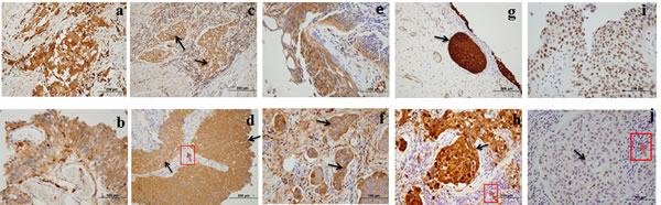 High expression of five biomarkers in bladder carcinoma (BCa) tissue.