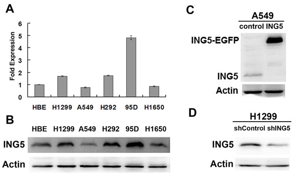 Establishment of ING5 overexpression and knockdown cell lines.
