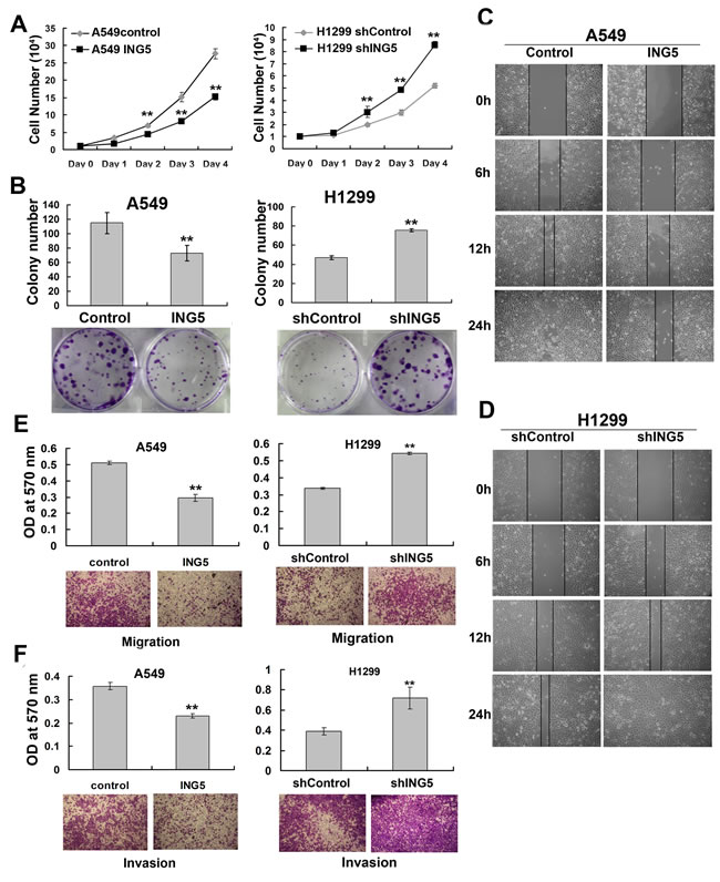 ING5 inhibits lung cancer proliferation, migration and invasion.